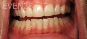 Katherine-Toubian-Dental-Bonding-after-2