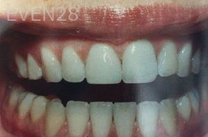 Katherine-Toubian-Dental-Bonding-after-3