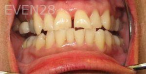 Katherine-Toubian-Dental-Bonding-before-1