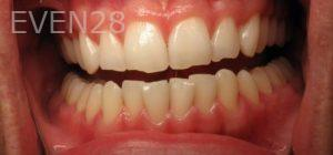 Katherine-Toubian-Dental-Bonding-before-2