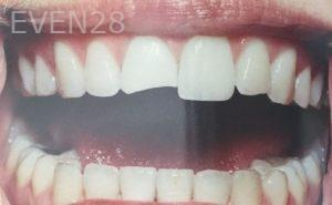 Katherine-Toubian-Dental-Bonding-before-3