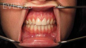 Katherine-Toubian-Dental-Crowns-after-1