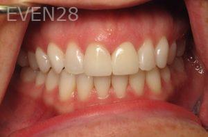 Katherine-Toubian-Dental-Crowns-after-2
