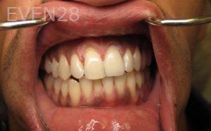 Katherine-Toubian-Dental-Crowns-after-3