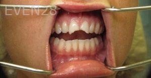 Katherine-Toubian-Dental-Crowns-before-1