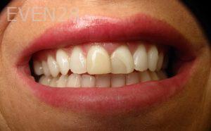 Katherine-Toubian-Dental-Crowns-before-2