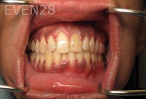 Katherine-Toubian-Dental-Crowns-before-3