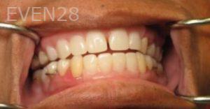 Katherine-Toubian-Dentures-after-1