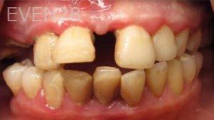 Katherine-Toubian-Dentures-before-1