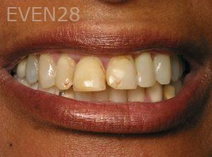 Kenneth-Mak-Porcelain-Veneers-before-4