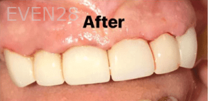 Kirollos-Riad-Dental-Crowns-after-1