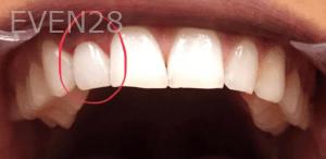 Kirollos-Riad-Dental-Crowns-after-2