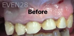 Kirollos-Riad-Dental-Crowns-before-1
