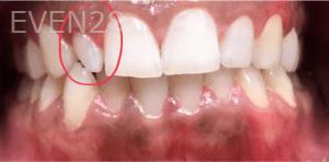 Kirollos-Riad-Dental-Crowns-before-2