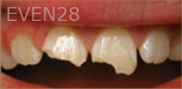 Kristy-Vetter-Dental-Bonding-before-1