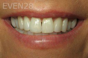 Kristy-Vetter-Dental-Crowns-after-1