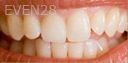 Kristy-Vetter-Dental-Crowns-after-2