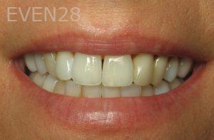 Kristy-Vetter-Dental-Crowns-before-1