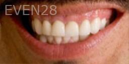 Kristy-Vetter-Full-Mouth-Rehabilitation-after-1