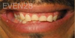 Kristy-Vetter-Full-Mouth-Rehabilitation-before-1