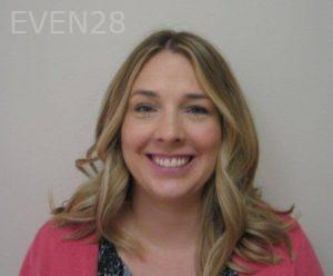 Kristy-Vetter-Invisalign-Clear-Aligners-after-1