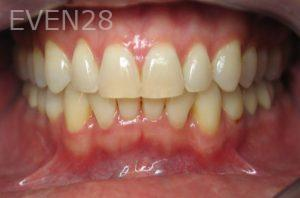 Kristy-Vetter-Invisalign-Clear-Aligners-after-2