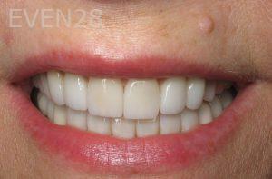 Kristy-Vetter-Smile-Makeover-after-1