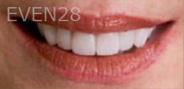 Kristy-Vetter-Smile-Makeover-after-2