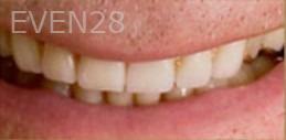 Kristy-Vetter-Smile-Makeover-after-3