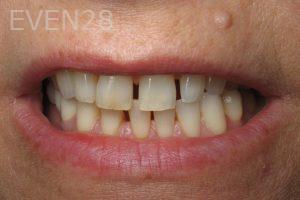 Kristy-Vetter-Smile-Makeover-before-1