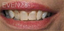 Kristy-Vetter-Smile-Makeover-before-2
