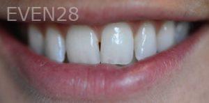Nazli-Majd-Porcelain-Veneers-before-3