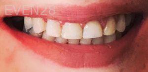 Neda-Naim-Full-Mouth-Rehabilitation-after-1