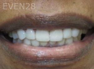Neda-Naim-Full-Mouth-Rehabilitation-after-2