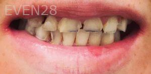 Neda-Naim-Full-Mouth-Rehabilitation-before-1
