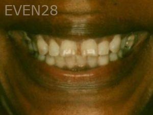 Neda-Naim-Full-Mouth-Rehabilitation-before-2