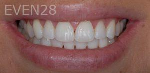Neda-Naim-Invisalign-Clear-Aligners-after-1