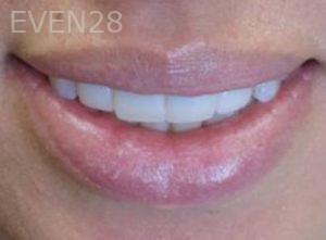 Neda-Naim-Smile-Makeover-after-1