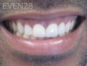 Neda-Naim-Smile-Makeover-after-2