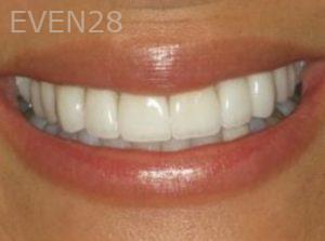 Neda-Naim-Smile-Makeover-after-4