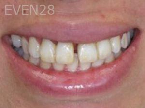 Neda-Naim-Smile-Makeover-before-1