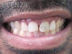 Neda-Naim-Smile-Makeover-before-2