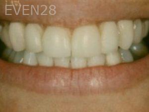 Neda-Naim-Smile-Makeover-before-4