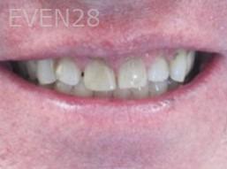 Neda-Naim-Smile-Makeover-before-5