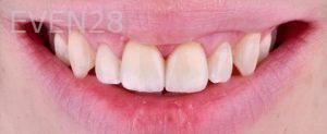 Neil-Hadaegh-Dental-Crowns-after-1
