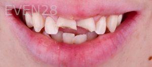 Neil-Hadaegh-Dental-Crowns-before-1