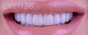 Neil-Hadaegh-Porcelain-Veneers-after-3b