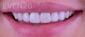 Neil-Hadaegh-Porcelain-Veneers-after-5b