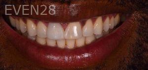Neil-Hadaegh-Porcelain-Veneers-before-15b