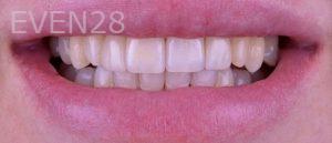 Neil-Hadaegh-Porcelain-Veneers-before-3b